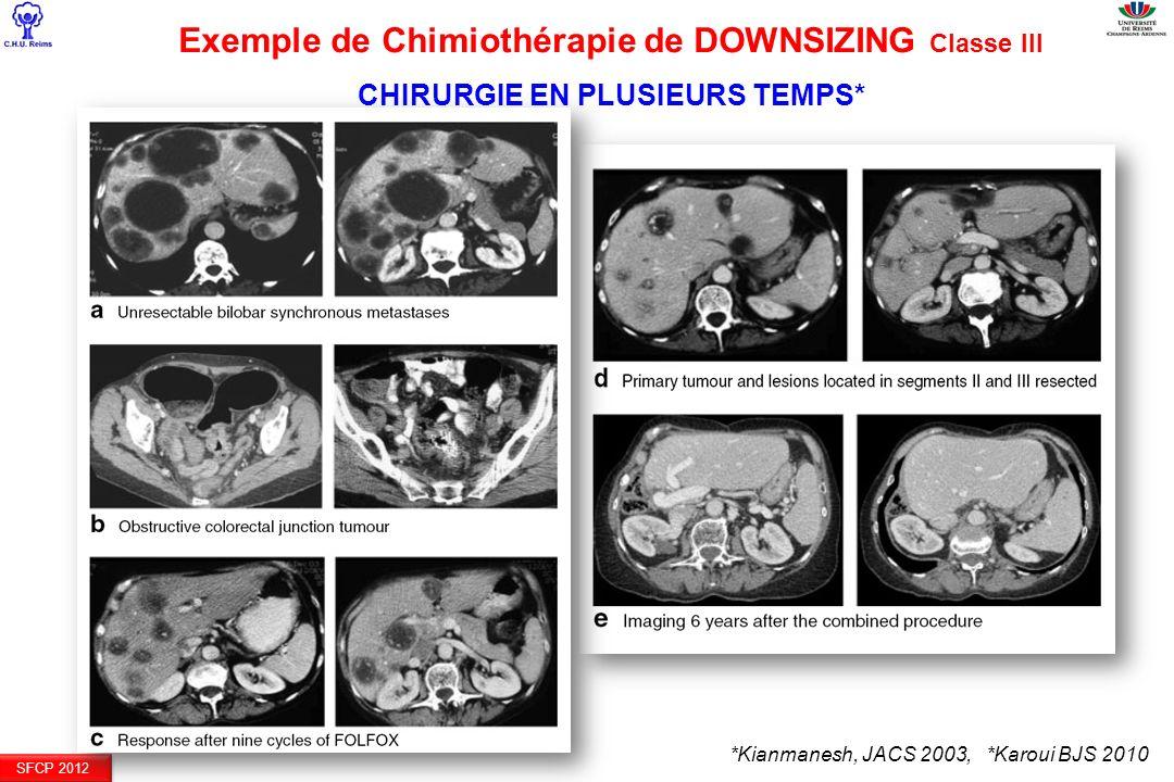 SFCP 2012 *Kianmanesh, JACS 2003, *Karoui BJS 2010 Exemple de Chimiothérapie de DOWNSIZING Classe III CHIRURGIE EN PLUSIEURS TEMPS*