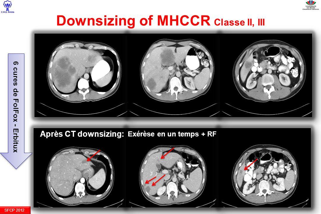 SFCP 2012 Après CT downsizing: Downsizing of MHCCR Classe II, III 6 cures de FolFox - Erbitux Exérèse en un temps + RF