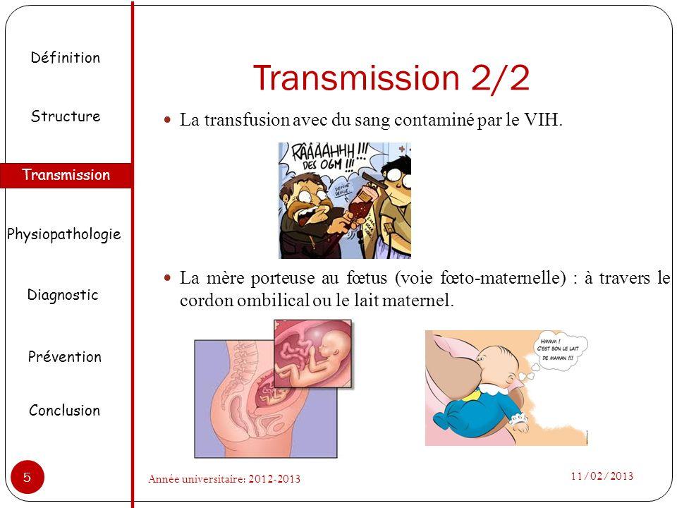 Transmission 2/2 La transfusion avec du sang contaminé par le VIH. La mère porteuse au fœtus (voie fœto-maternelle) : à travers le cordon ombilical ou