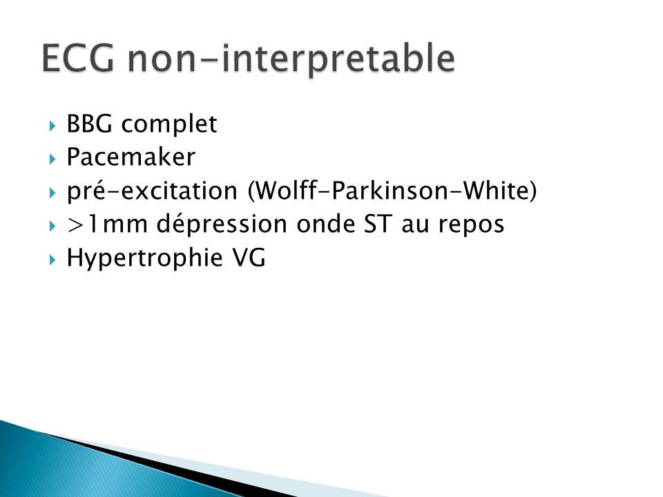 BBG complet Pacemaker pré-excitation (Wolff-Parkinson-White) >1mm dépression onde ST au repos Hypertrophie VG