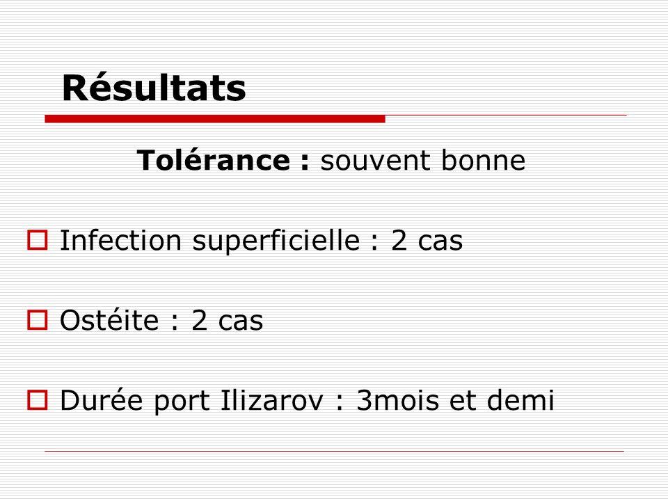 Résultats Tolérance : souvent bonne Infection superficielle : 2 cas Ostéite : 2 cas Durée port Ilizarov : 3mois et demi