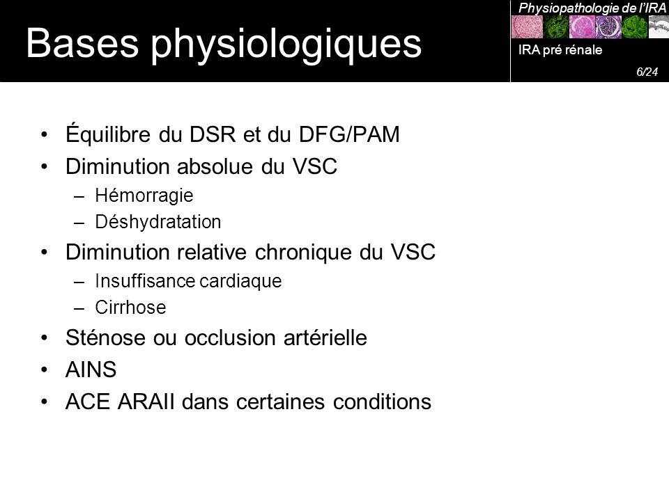 Équilibre du DSR et du DFG/PAM Diminution absolue du VSC –Hémorragie –Déshydratation Diminution relative chronique du VSC –Insuffisance cardiaque –Cir