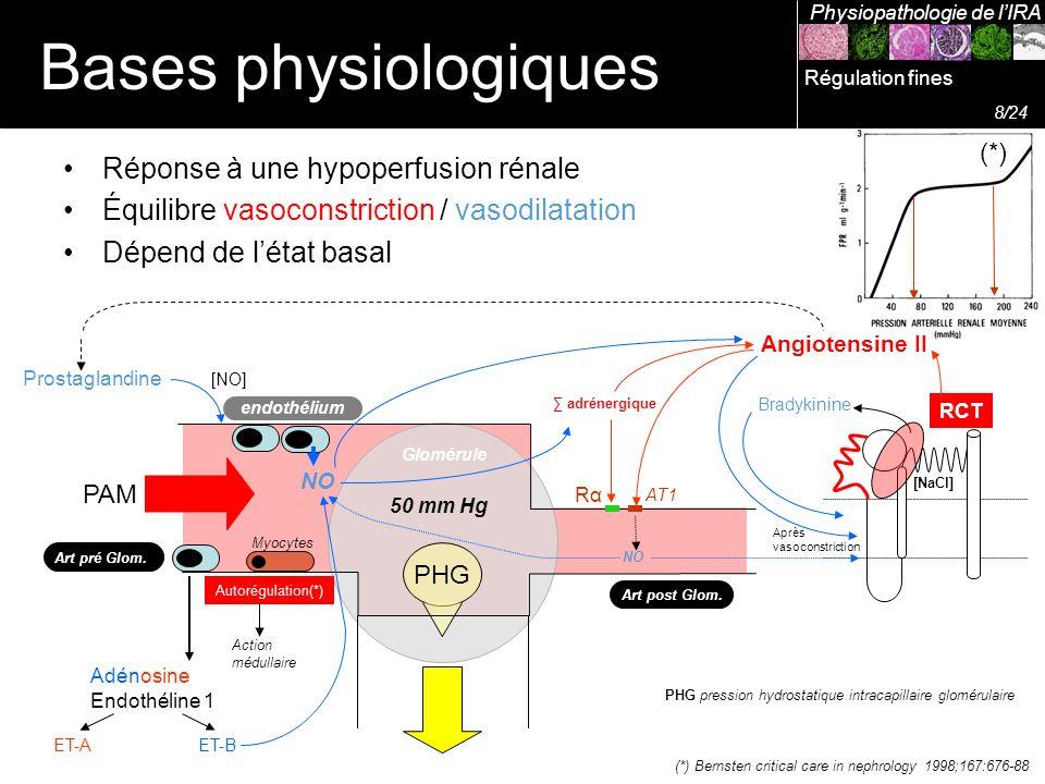 PHG Réponse à une hypoperfusion rénale Équilibre vasoconstriction / vasodilatation Dépend de létat basal Art pré Glom. Art post Glom. Prostaglandine P