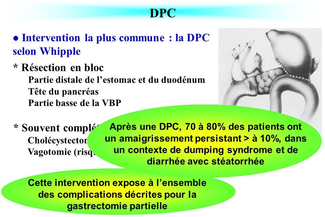 * Souvent complétée par Cholécystectomie (risque de lithiase par stase) Vagotomie (risque dulcère peptique sur le versant jéjunal) DPC Intervention la