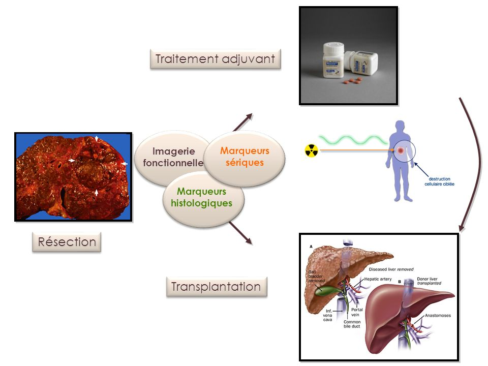RésectionRésection TransplantationTransplantation Traitement adjuvant Imageriefonctionnelle Marqueurs sériques Marqueurs histologiques
