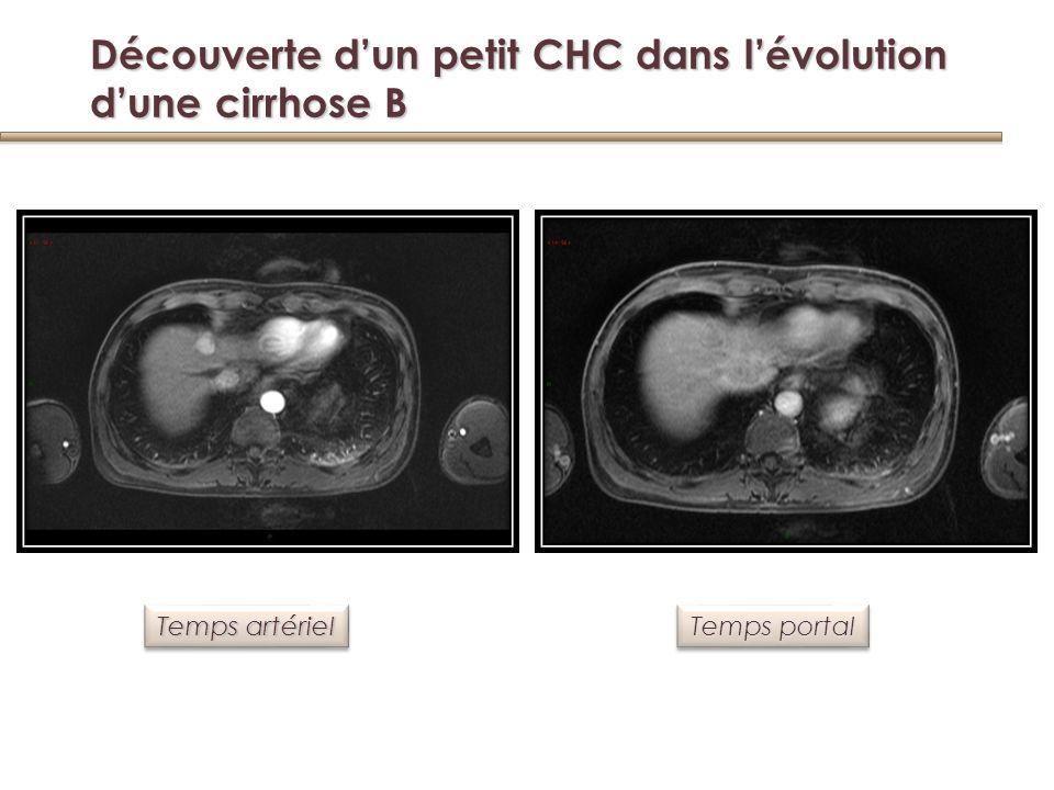 Roncalli, J Hepatol 2006 Dysplasie à grandes cellules Dysplasie à grandes cellules CarcinomehépatocellulaireCarcinomehépatocellulaire Dysplasie à grandes cellules Dysplasie à grandes cellules Nodule cirrhotique Entièrementdysplasique Entièrementdysplasique Dysplasie à grandes cellules Dysplasie à grandes cellules Dysplasie à petites cellules Dysplasie à petites cellules Dysplasie à petites ou à grandes cellules et risque de CHC