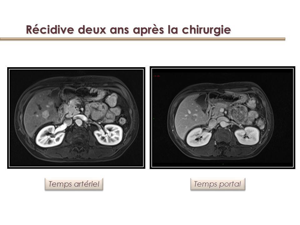 Valeur pronostique de lexpression de CK 10 et CK 19 sur la récidive et la survie après résection Yang, Clin Cnacer Res 2008 CK 10 CK 19 CK 10 et 19