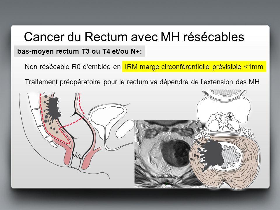 Cancer du Rectum avec MH résécables bas-moyen rectum T3 ou T4 et/ou N+: Traitement préopératoire pour le rectum va dépendre de lextension des MH Non r