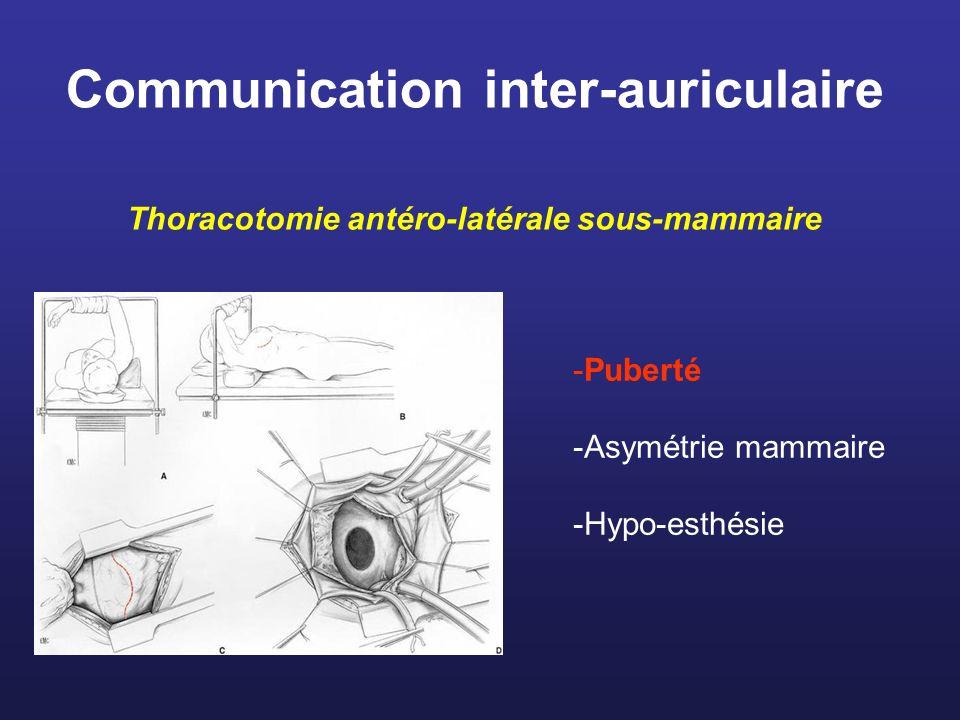 Communication inter-auriculaire Thoracotomie antéro-latérale sous-mammaire -Puberté -Asymétrie mammaire -Hypo-esthésie