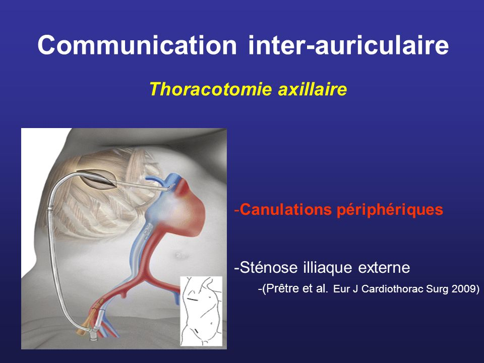 Communication inter-auriculaire Thoracotomie axillaire -Canulations périphériques -Sténose illiaque externe -(Prêtre et al. Eur J Cardiothorac Surg 20
