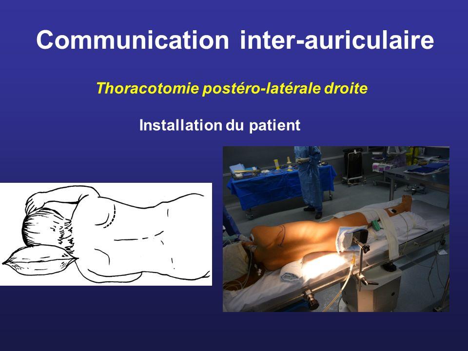 Thoracotomie postéro-latérale droite Exposition Suspension du péricarde Bourse oreillette droite Aorte