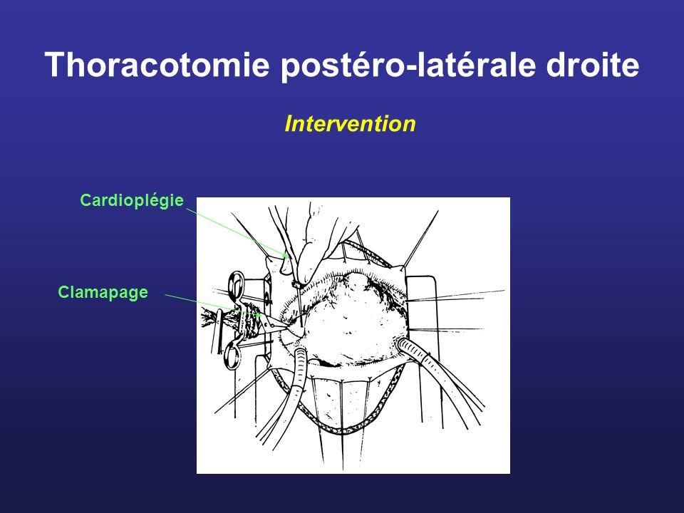 Thoracotomie postéro-latérale droite Intervention Clamapage Cardioplégie