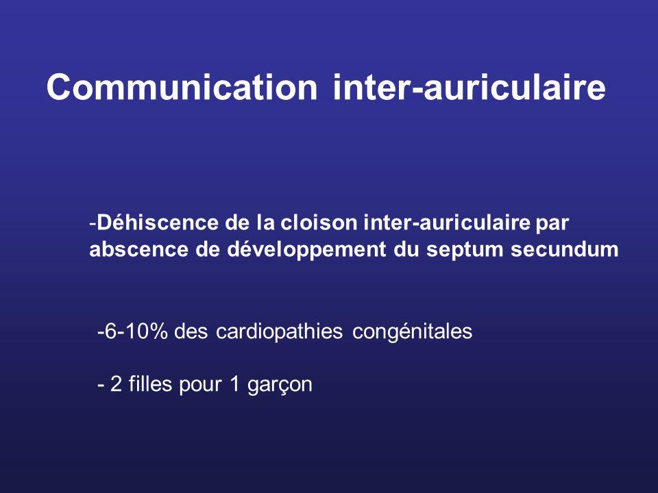 Communication inter-auriculaire -6-10% des cardiopathies congénitales - 2 filles pour 1 garçon -Déhiscence de la cloison inter-auriculaire par abscenc