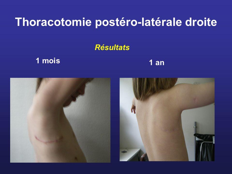 Thoracotomie postéro-latérale droite 1993- 2008 : 350 patients - Age 5 mois- 14 ans ( 4 ans) -Poids 5 - 44 kgs ( 11 kgs) -Durée de séjour 8 jours -Décès1