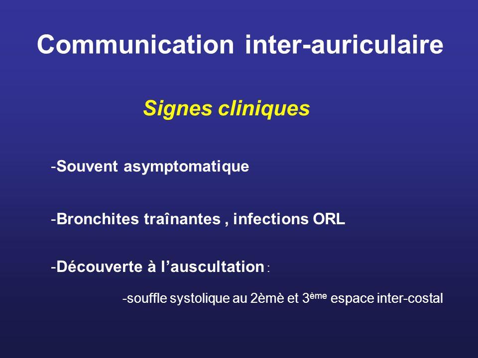 Communication inter-auriculaire Signes cliniques -Souvent asymptomatique -Bronchites traînantes, infections ORL -Découverte à lauscultation : -souffle
