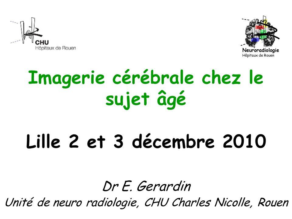 Imagerie cérébrale chez le sujet âgé Lille 2 et 3 décembre 2010 Dr E. Gerardin Unité de neuro radiologie, CHU Charles Nicolle, Rouen