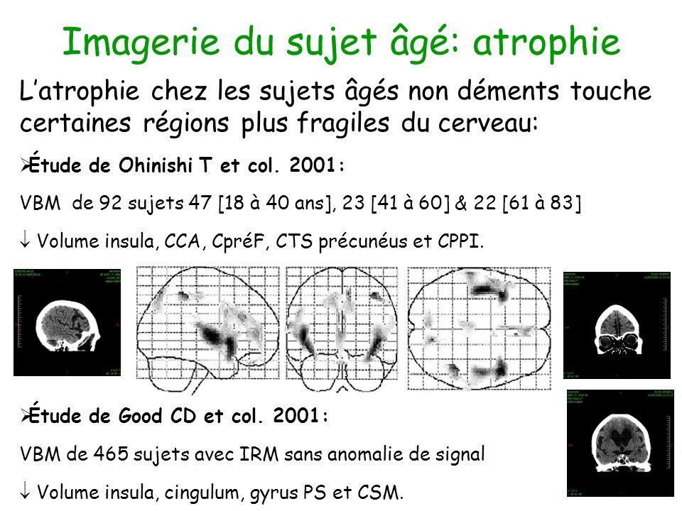 Imagerie du sujet âgé: atrophie Latrophie chez les sujets âgés non déments touche certaines régions plus fragiles du cerveau: Étude de Ohinishi T et c