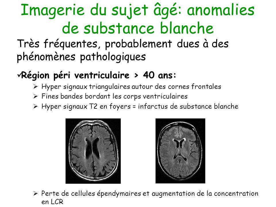 Imagerie du sujet âgé: anomalies de substance blanche Très fréquentes, probablement dues à des phénomènes pathologiques Région péri ventriculaire > 40