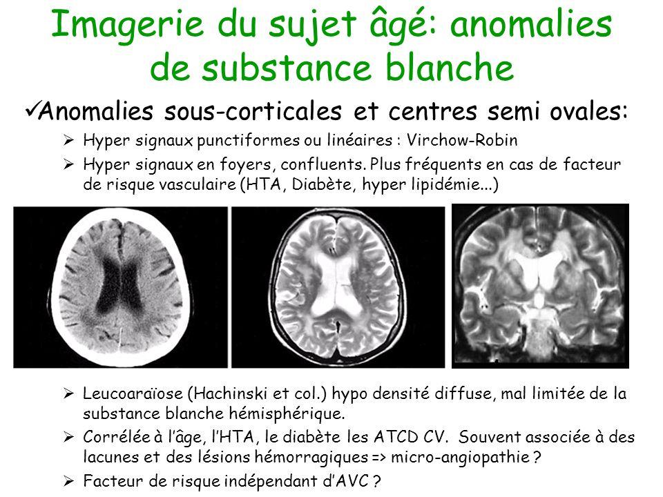 Imagerie du sujet âgé: anomalies de substance blanche Anomalies sous-corticales et centres semi ovales: Hyper signaux punctiformes ou linéaires : Virchow-Robin Hyper signaux en foyers, confluents.