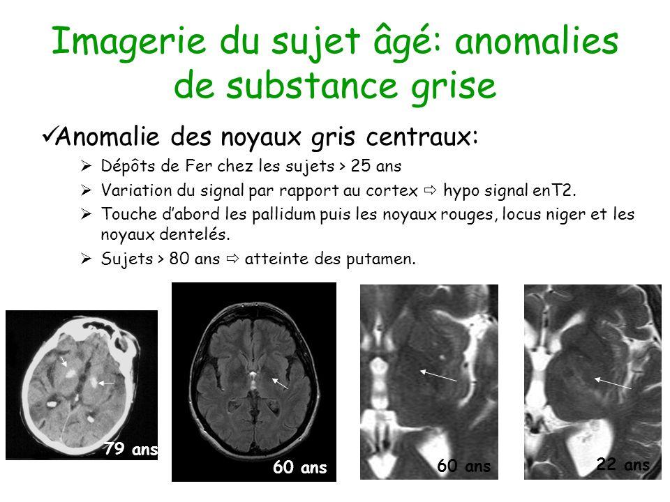 Imagerie du sujet âgé: anomalies de substance grise Anomalie des noyaux gris centraux: Dépôts de Fer chez les sujets > 25 ans Variation du signal par rapport au cortex hypo signal enT2.