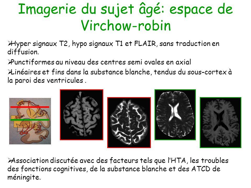 Imagerie du sujet âgé: espace de Virchow-robin Hyper signaux T2, hypo signaux T1 et FLAIR, sans traduction en diffusion. Punctiformes au niveau des ce