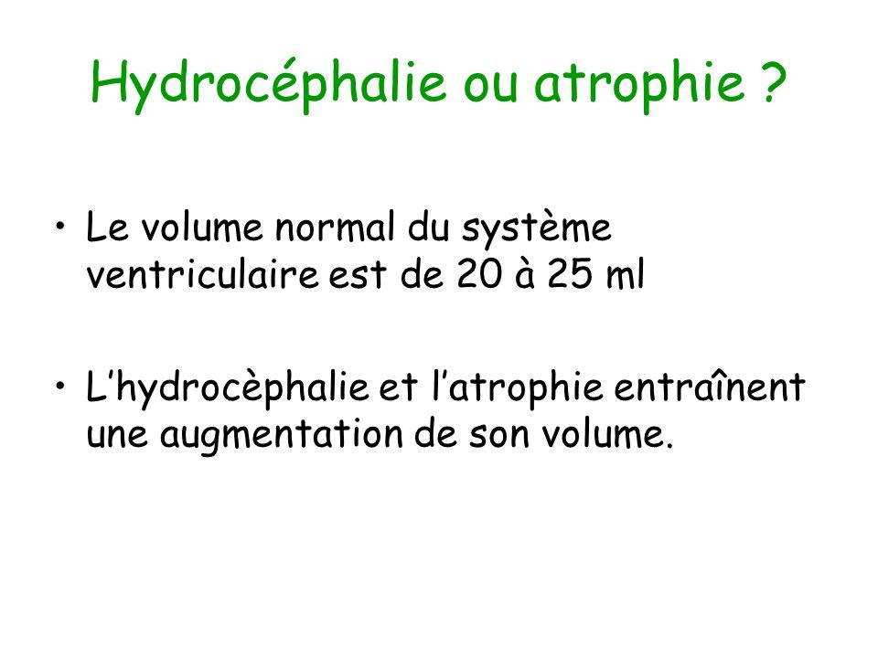 Hydrocéphalie ou atrophie ? Le volume normal du système ventriculaire est de 20 à 25 ml Lhydrocèphalie et latrophie entraînent une augmentation de son