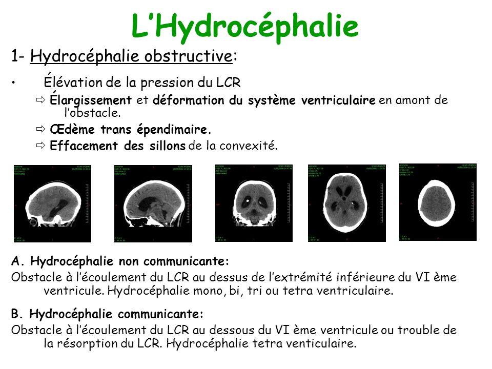 LHydrocéphalie 1- Hydrocéphalie obstructive: Élévation de la pression du LCR Élargissement et déformation du système ventriculaire en amont de lobstacle.
