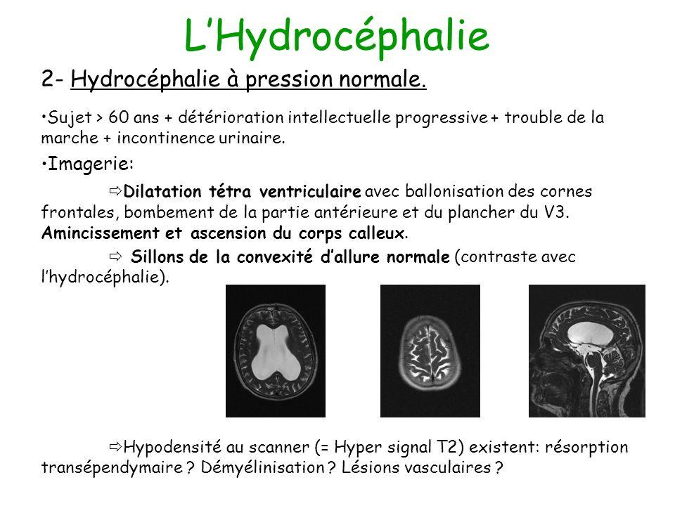 LHydrocéphalie 2- Hydrocéphalie à pression normale. Sujet > 60 ans + détérioration intellectuelle progressive + trouble de la marche + incontinence ur