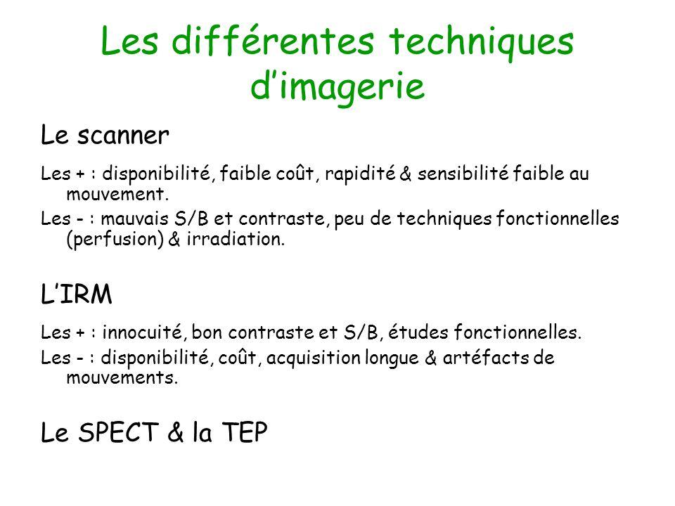 Les différentes techniques dimagerie Le scanner Les + : disponibilité, faible coût, rapidité & sensibilité faible au mouvement. Les - : mauvais S/B et