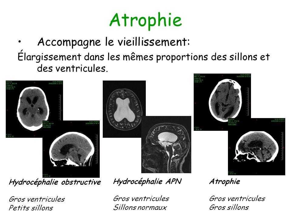Atrophie Accompagne le vieillissement: Élargissement dans les mêmes proportions des sillons et des ventricules.