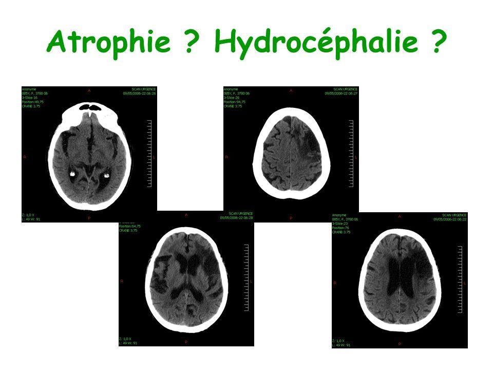 Atrophie ? Hydrocéphalie ?
