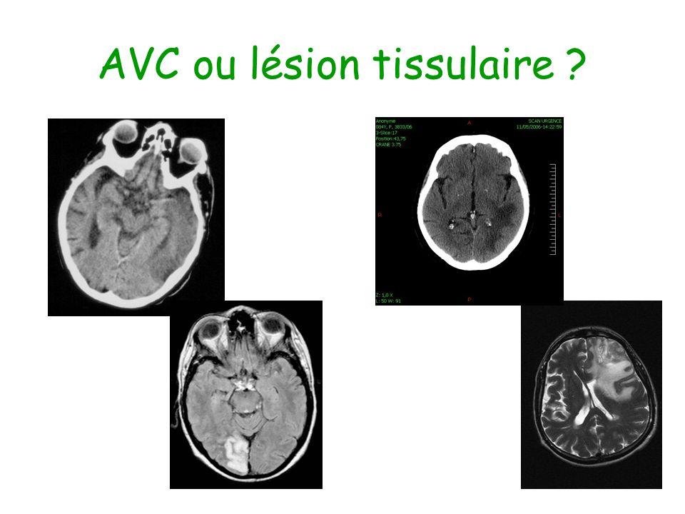 AVC ou lésion tissulaire ?