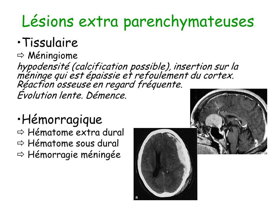 Lésions extra parenchymateuses Tissulaire Méningiome hypodensité (calcification possible), insertion sur la méninge qui est épaissie et refoulement du