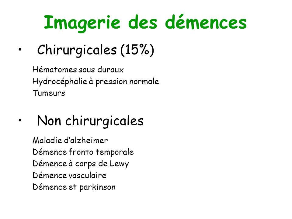 Imagerie des démences Chirurgicales (15%) Hématomes sous duraux Hydrocéphalie à pression normale Tumeurs Non chirurgicales Maladie dalzheimer Démence