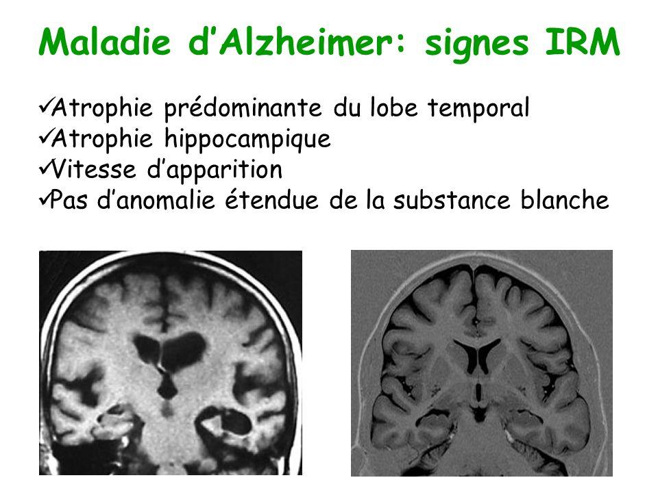 Maladie dAlzheimer: signes IRM Atrophie prédominante du lobe temporal Atrophie hippocampique Vitesse dapparition Pas danomalie étendue de la substance