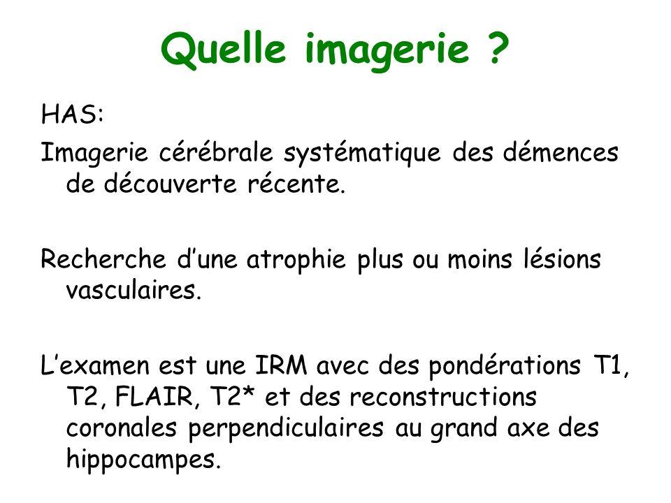 Quelle imagerie ? HAS: Imagerie cérébrale systématique des démences de découverte récente. Recherche dune atrophie plus ou moins lésions vasculaires.