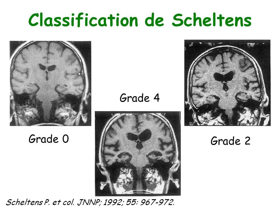 Classification de Scheltens Grade 0 Grade 2 Grade 4 Scheltens P. et col. JNNP; 1992; 55: 967-972.