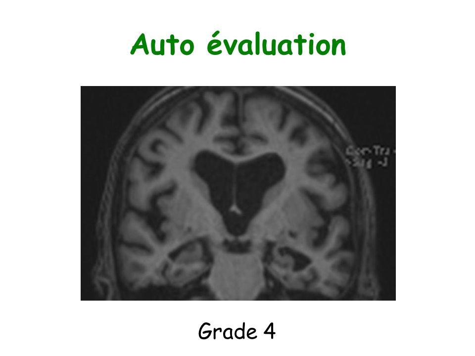 Auto évaluation Grade 4