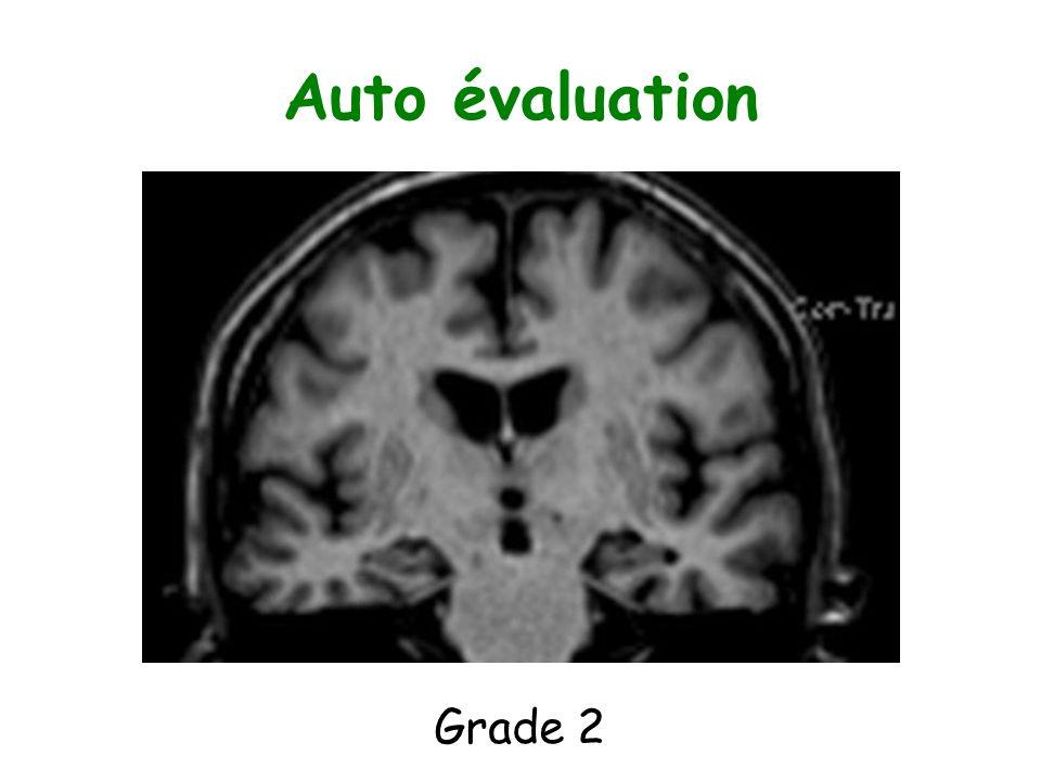 Auto évaluation Grade 2