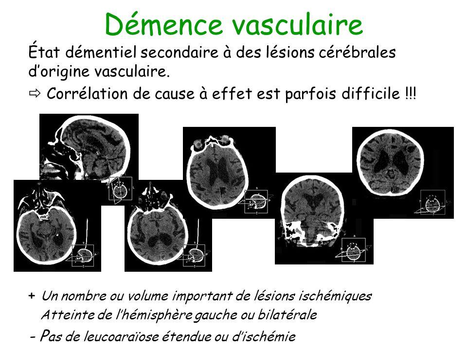 Démence vasculaire État démentiel secondaire à des lésions cérébrales dorigine vasculaire. Corrélation de cause à effet est parfois difficile !!! + Un