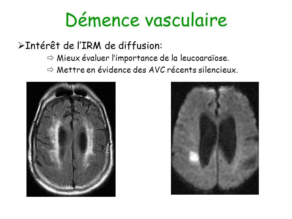 Démence vasculaire Intérêt de lIRM de diffusion: Mieux évaluer limportance de la leucoaraïose. Mettre en évidence des AVC récents silencieux.