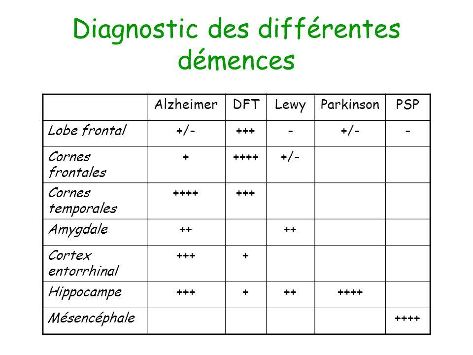 Diagnostic des différentes démences AlzheimerDFTLewyParkinsonPSP Lobe frontal+/-+++-+/-- Cornes frontales ++++++/- Cornes temporales +++++++ Amygdale++ Cortex entorrhinal ++++ Hippocampe++++++++++ Mésencéphale++++