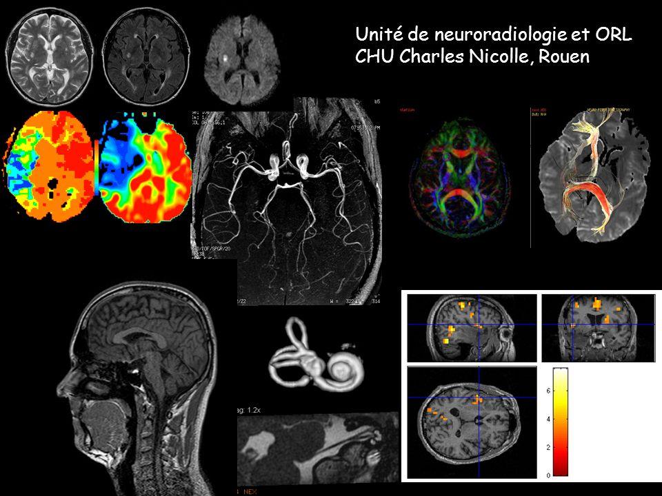 Unité de neuroradiologie et ORL CHU Charles Nicolle, Rouen