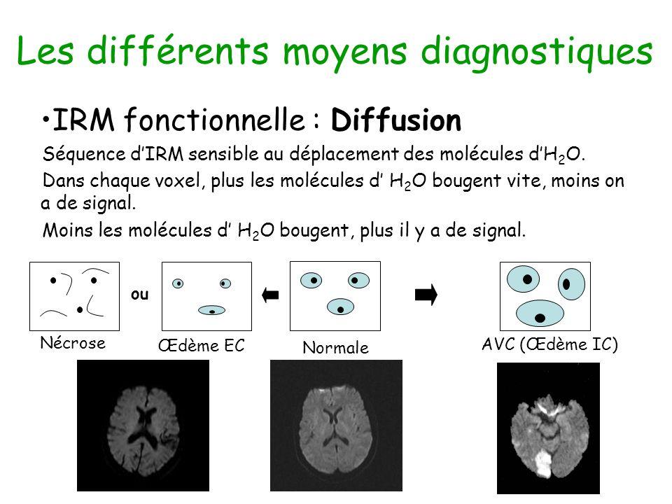 Les différents moyens diagnostiques IRM fonctionnelle : Diffusion Séquence dIRM sensible au déplacement des molécules dH 2 O. Dans chaque voxel, plus