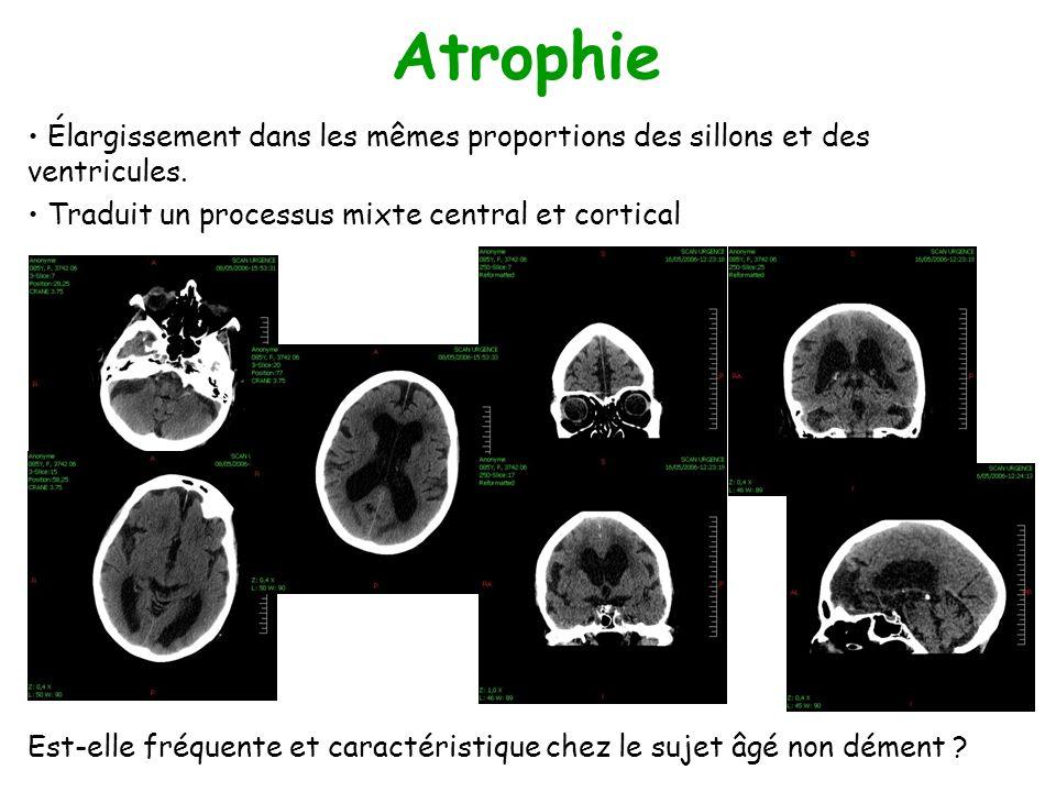 Atrophie Élargissement dans les mêmes proportions des sillons et des ventricules. Traduit un processus mixte central et cortical Est-elle fréquente et