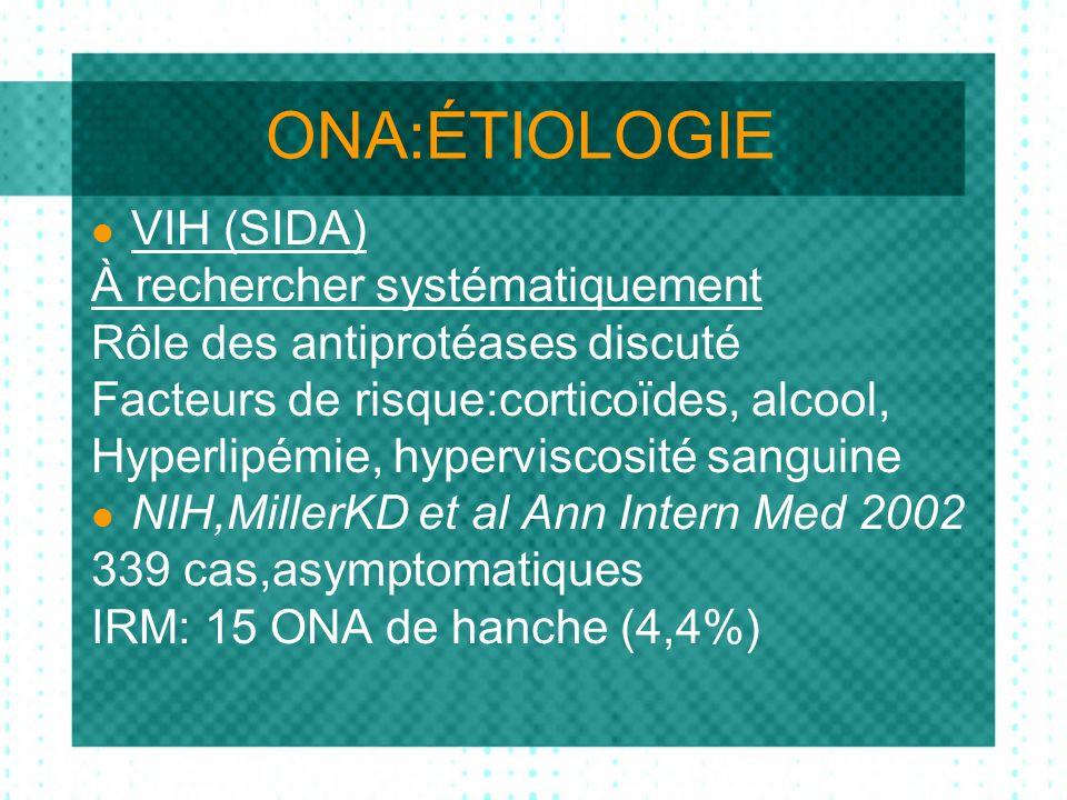 ONA:ÉTIOLOGIE VIH (SIDA) À rechercher systématiquement Rôle des antiprotéases discuté Facteurs de risque:corticoïdes, alcool, Hyperlipémie, hyperviscosité sanguine NIH,MillerKD et al Ann Intern Med 2002 339 cas,asymptomatiques IRM: 15 ONA de hanche (4,4%)