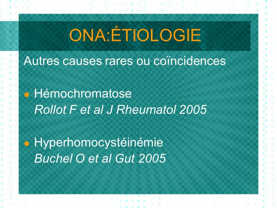 ONA:ÉTIOLOGIE Autres causes rares ou coïncidences Hémochromatose Rollot F et al J Rheumatol 2005 Hyperhomocystéinémie Buchel O et al Gut 2005