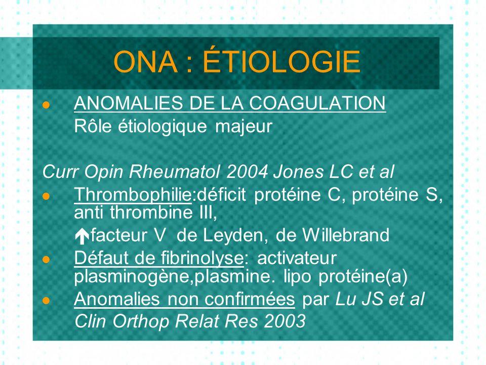 ONA : ÉTIOLOGIE ANOMALIES DE LA COAGULATION Rôle étiologique majeur Curr Opin Rheumatol 2004 Jones LC et al Thrombophilie:déficit protéine C, protéine S, anti thrombine III, facteur V de Leyden, de Willebrand Défaut de fibrinolyse: activateur plasminogène,plasmine.