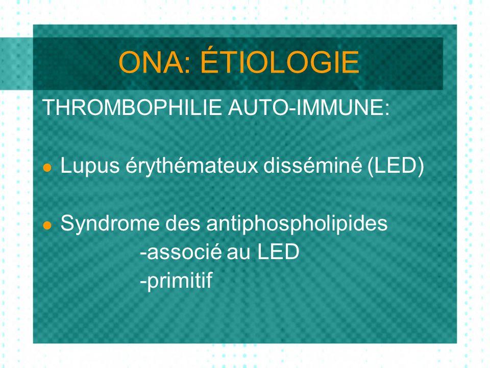 ONA: ÉTIOLOGIE THROMBOPHILIE AUTO-IMMUNE: Lupus érythémateux disséminé (LED) Syndrome des antiphospholipides -associé au LED -primitif
