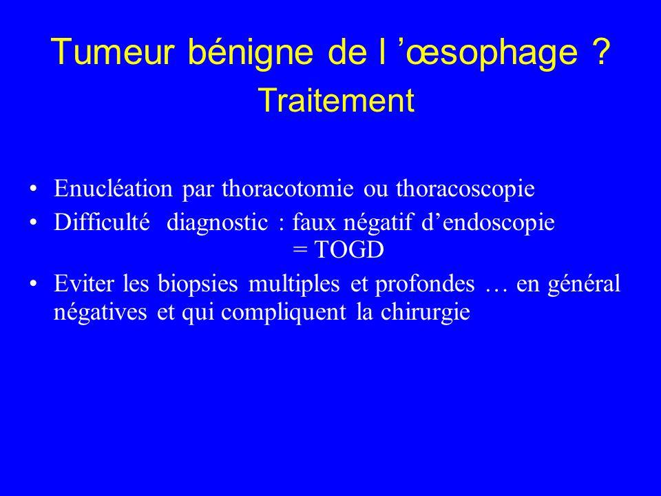 Tumeur bénigne de l œsophage ? Traitement Enucléation par thoracotomie ou thoracoscopie Difficulté diagnostic : faux négatif dendoscopie = TOGD Eviter